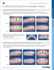 New Invisalign - Quick Start Guide for Cosmetic Dental Braces page 3